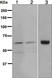 Western blot - Anti-Glypican 3 antibody [EPR5547] (ab124829)
