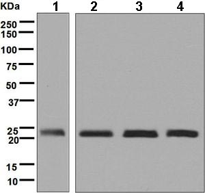 Western blot - Anti-TCTP antibody [EP5541] (ab124835)