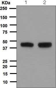 Western blot - Anti-C10orf7 antibody [EPR5860] (ab124878)