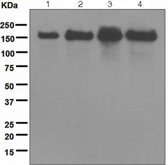 Western blot - Anti-UGGT antibody [EPR5105] (ab124879)