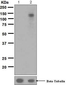 Western blot - Anti-EPH A3+A4+A5 (phospho Y779 + Y779 + Y833) antibody [EPR5684] (ab124881)