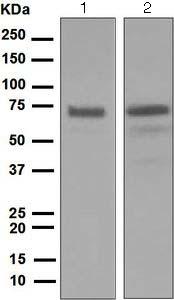 Western blot - Anti-FLCN antibody [EPNCIR147] (ab124885)