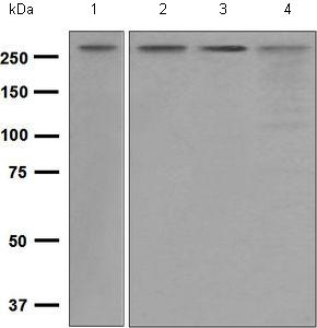 Western blot - Anti-SPTBN1 antibody [EPR5869] (ab124888)
