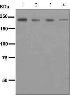 Western blot - Anti-LY75 antibody [EPR5233] (ab124897)