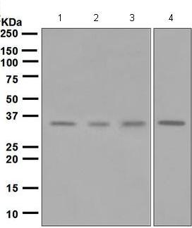 Western blot - Anti-Kallikrein 2 antibody [EPR6676] (ab124899)