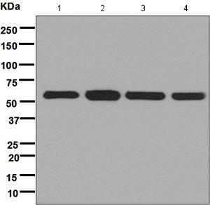 Western blot - Anti-FKBP52 antibody [EPR6619] (ab124906)