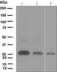 Western blot - Anti-Ephrin A1 antibody [EPR1785(2)] (ab124911)