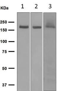 Western blot - Anti-NMDAR2A antibody [EPR2465(2)] (ab124913)