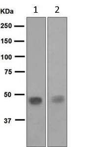 Western blot - Anti-Pancreatic Lipase antibody [EPR6276] (ab124915)
