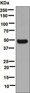 Western blot - Anti-Cytochrome P450 3A4  antibody [EPR6202] (ab124921)