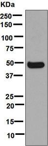 Western blot - Anti-Cytochrome P450 3A4  antibody [EPR6202] (ab124921)