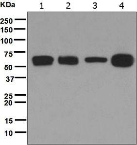 Western blot - Anti-CARD9 antibody [EPR6488] (ab124922)