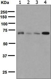 Western blot - Anti-TLS/FUS antibody [EPR5812] (ab124923)