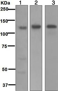 Western blot - Anti-Integrin alpha 6 antibody [EPR5578] (ab124924)