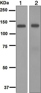 Western blot - Anti-TLR7 antibody [EPR2088(2)] (ab124928)
