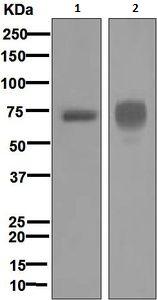 Western blot - Anti-Hemopexin antibody [EPR5610] (ab124935)