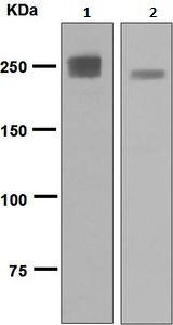 Western blot - Anti-MYH2 [EPR5280] antibody (ab124937)