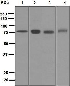 Western blot - Anti-Plasma Kallikrein 1B antibody [EPR5707] (ab124938)