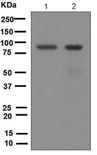Western blot - Anti-IKK beta antibody [EPR6043] (ab124957)