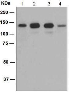 Western blot - Anti-srGAP2 antibody [EP2506(2)] (ab124958)