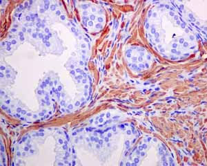 Immunohistochemistry (Formalin/PFA-fixed paraffin-embedded sections) - Anti-alpha smooth muscle Actin antibody [EPR5368] (ab124964)