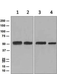 Western blot - Anti-Pannexin 1 antibody [EPR5556] (ab124969)