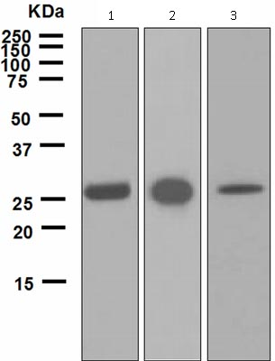 Western blot - Anti-Carbonic Anhydrase I antibody [EPR5192] (ab124976)