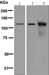 Western blot - Anti-NUP98 antibody [EPR6678] (ab124980)