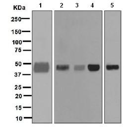 Western blot - Anti-Pentraxin 3 antibody [EPR6699] (ab125007)