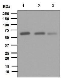 Western blot - Anti-Fyn antibody [EPR5500] (ab125016)