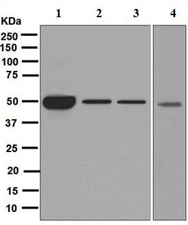 Western blot - Anti-Cytochrome P450 17A1 antibody [EPR6293] (ab125022)