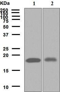 Western blot - Anti-ARF5 antibody [EPR7050] (ab125023)