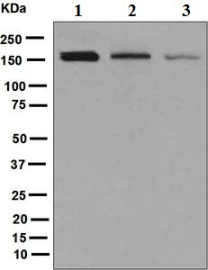 Western blot - Anti-ROCK2 antibody [EPR7141(B)] (ab125025)