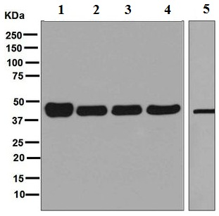 Western blot - Anti-Folate Binding Protein antibody [EPR4708(2)] (ab125030)