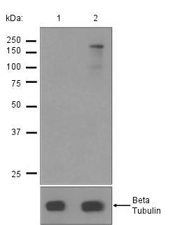 Western blot - Anti-ABCA1 (phospho S2054) antibody [EPR2485] (ab125064)