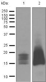 Western blot - Anti-CD52 antibody [EPR3153(2)] (ab125071)