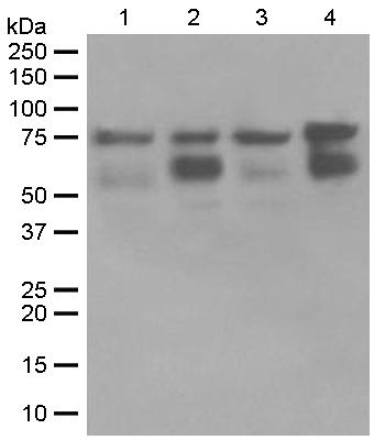 Western blot - Anti-RIP antibody [EPR4689] (ab125072)