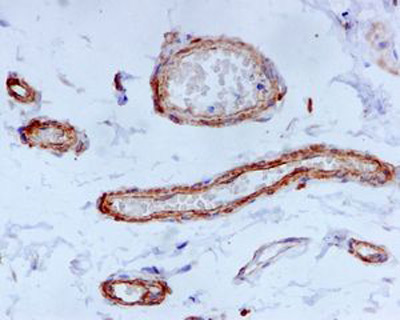 Immunohistochemistry (Formalin/PFA-fixed paraffin-embedded sections) - Anti-EFEMP2 antibody [EPR684(2)] (ab125073)