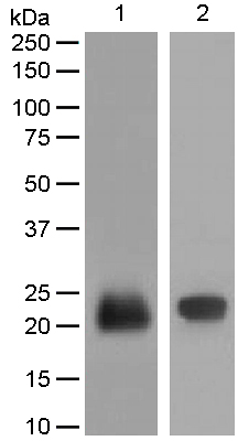 Western blot - Anti-Lipocalin-2 / NGAL antibody [EPR5084] (ab125075)