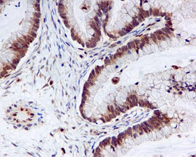 Immunohistochemistry (Formalin/PFA-fixed paraffin-embedded sections) - Anti-DUSP3 antibody [EPR5492] (ab125077)