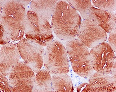 Immunohistochemistry (Formalin/PFA-fixed paraffin-embedded sections) - Anti-Myf5 antibody [EPR4899] (ab125078)