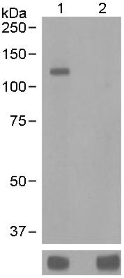 Western blot - Anti-alpha Adducin (phospho S436) antibody [EPR2176] (ab125081)