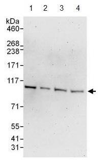 Western blot - Anti-VPS11 antibody (ab125083)