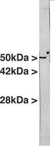 Western blot - Anti-Vimentin antibody [2D1] (ab125089)