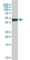 Western blot - Anti-FOXA1 antibody [3C1] (ab125091)