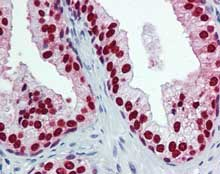 Immunohistochemistry (Formalin/PFA-fixed paraffin-embedded sections) - Anti-FOXA1 antibody [3C1] (ab125091)