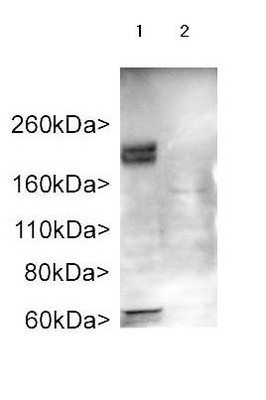 Western blot - Anti-ADCY3 antibody (ab125093)