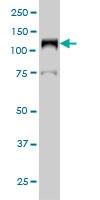 Western blot - Anti-DNA Ligase I antibody [10G12] (ab125095)