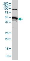 Western blot - Anti-STK38 antibody [6F1] (ab125131)