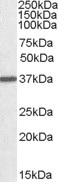 Western blot - Anti-liver Arginase antibody (ab125134)